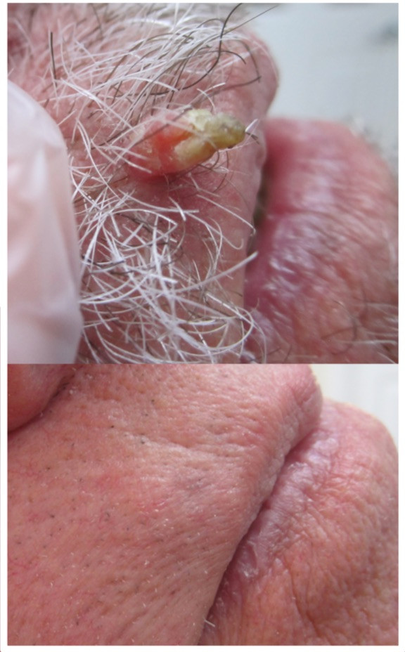 Skin tag removal on lip