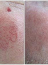 Facial Thread Vein Removal Arundel, Chichester, Bognor, West Sussex