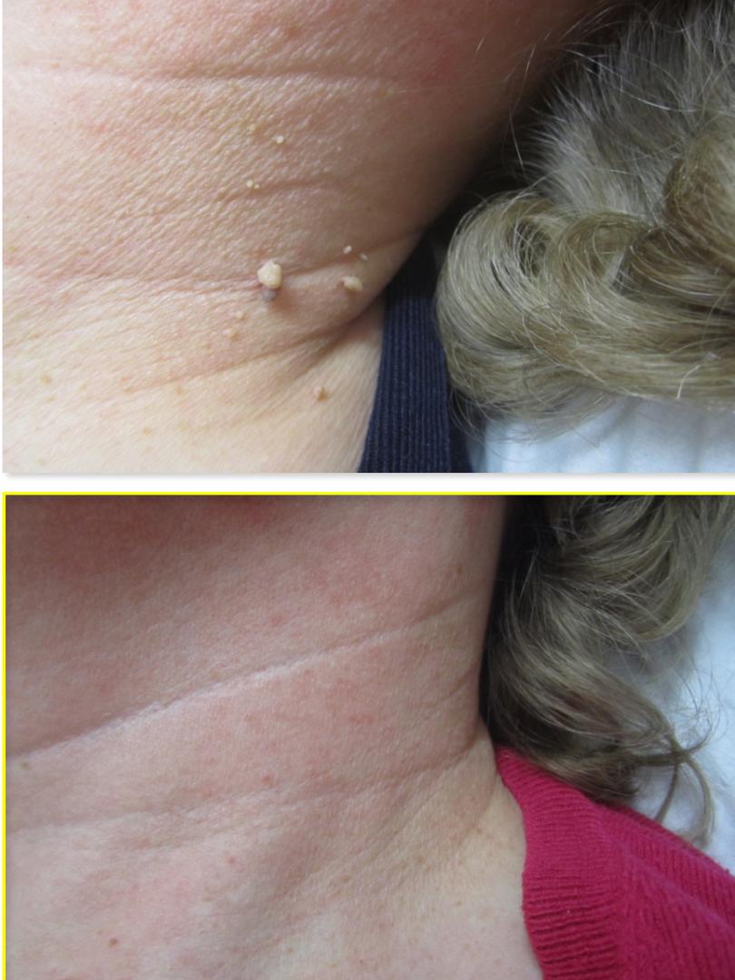 skin tag removal neck, Elm Lodge Beauty Studio, Barnham near Arundel West sussex