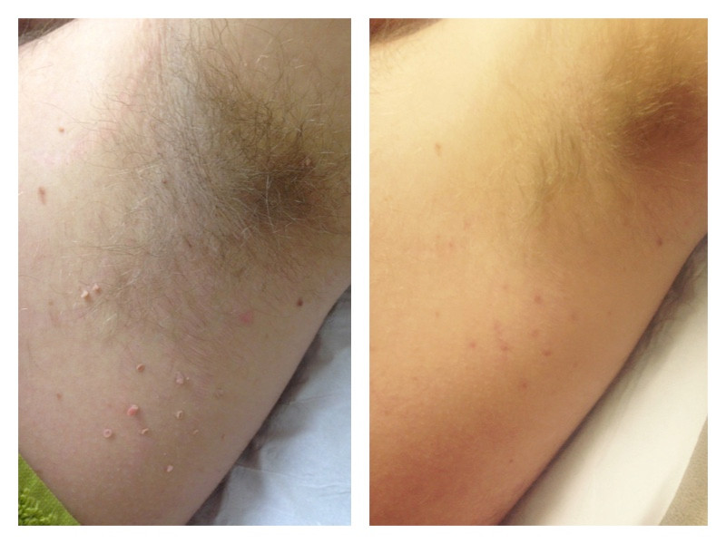 skin tag removal under arm, Arundel west sussex