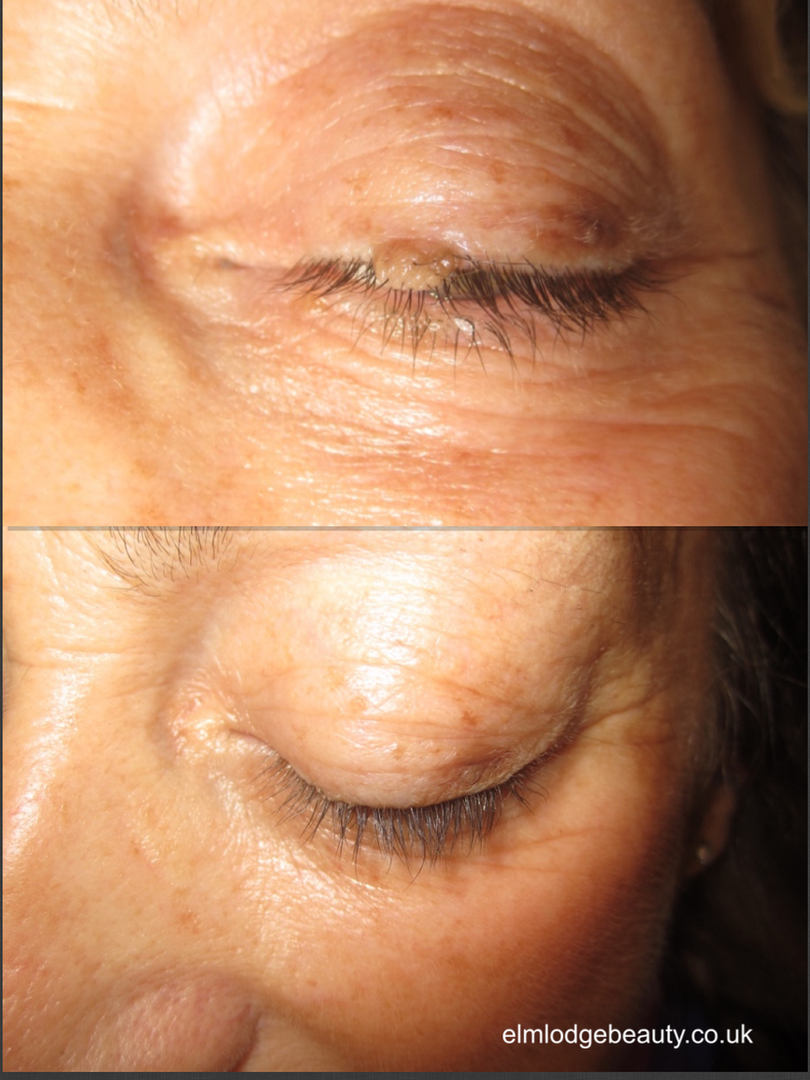 skin tag removal on eye lid, west sussex