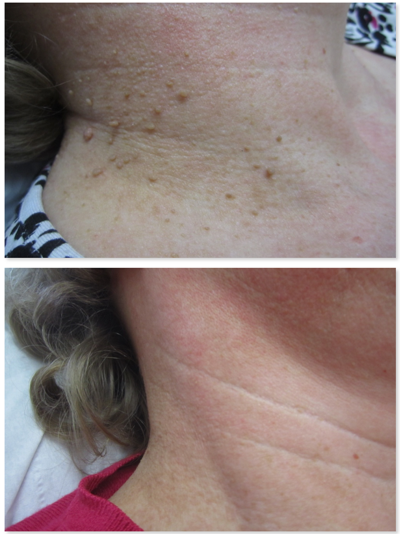 Skin tag removal of multiple tags from neck, Arundel west sussex