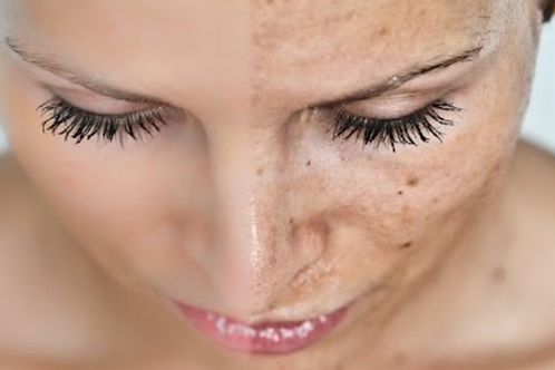 Gift Voucher - Advanced Cosmetic Procedure Treatments