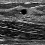Ultraschall-Biopsie-2.png