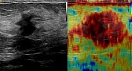 Ultraschall-Biopsie-3.png