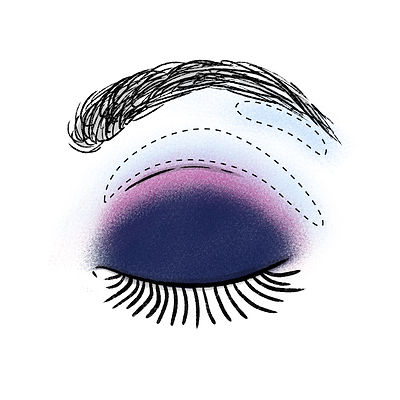 protruding-eyes-3.jpg
