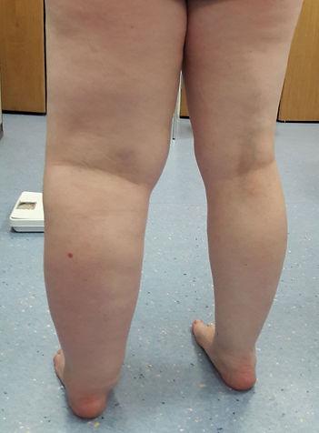 Primary-Lymphoedema-of-the-Leg1.jpg