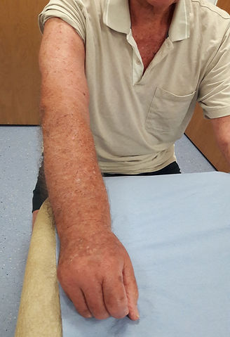 Secondary-Lymphoedema-of-the-Arm.jpg