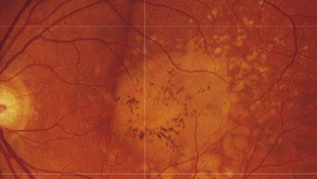 The long-term implications of Dry Macular Degeneration