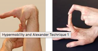 Hypermobility and the Alexander Technique