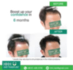 Asian Male FUE Hair Transplant ปลูกผม