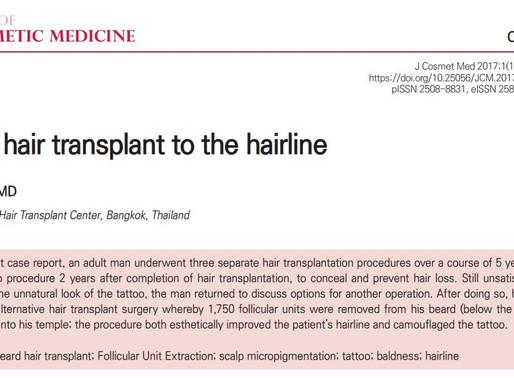 Dr.Viroj on Journal : Beard hair transplant to the hairline
