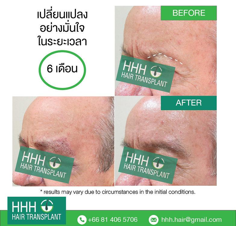 Eye Brow Transplant at HHH, Bangkok