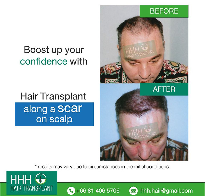 hair transplant on scar