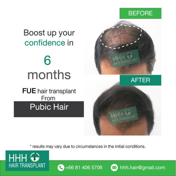 "Best Cost Hair Transplant in Bangkok, Thailand | ""ปลูกผม"""