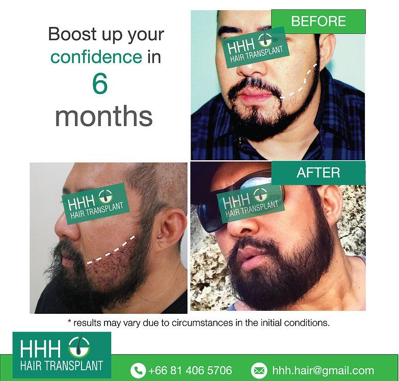 best beard transplant bangkok