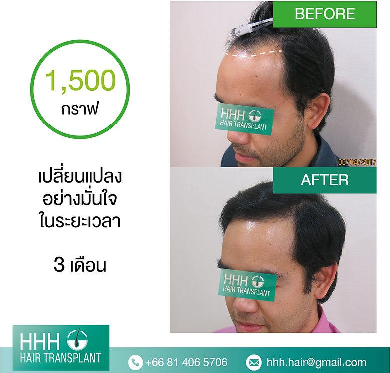 FUE HHH Hair Transplant