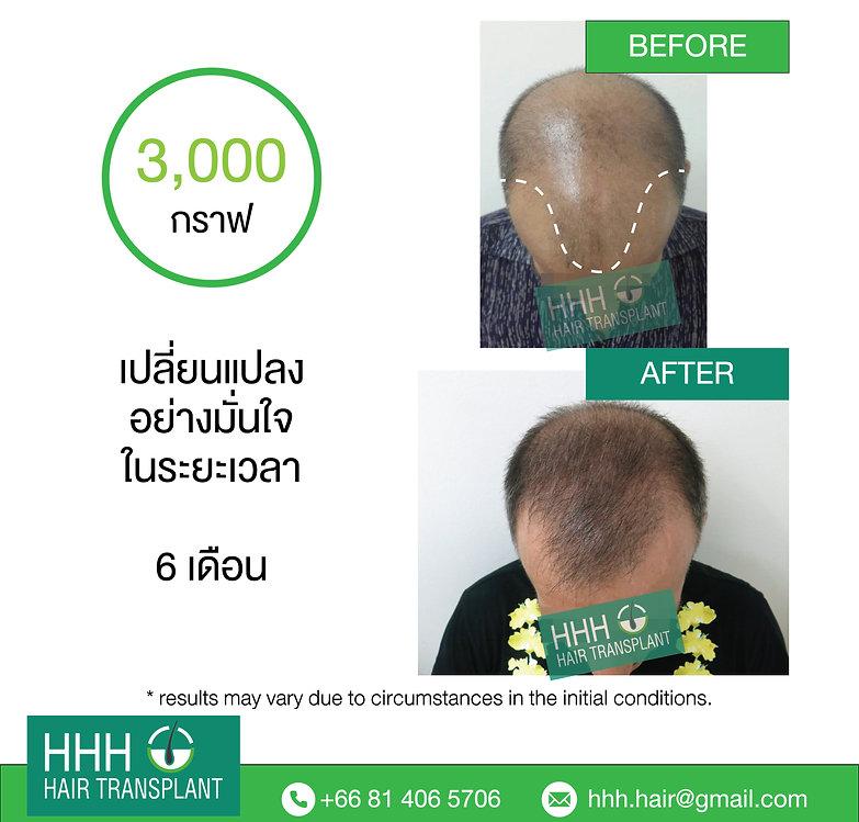 best men hair transplant thailand