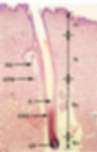 Microscopic cross section of hair follicle