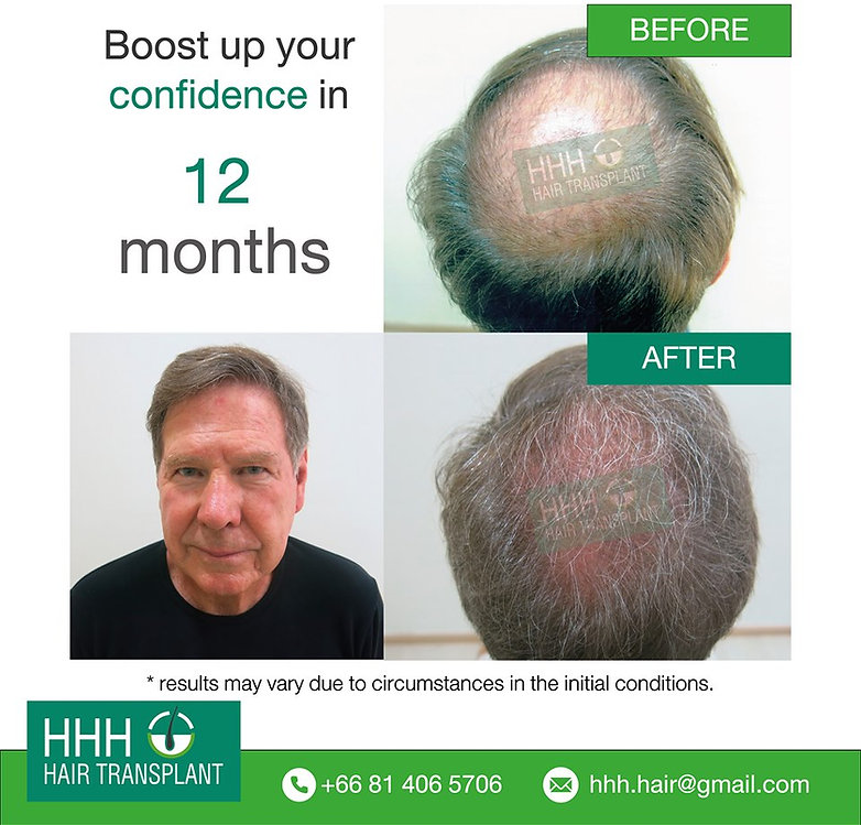 men hair transplant
