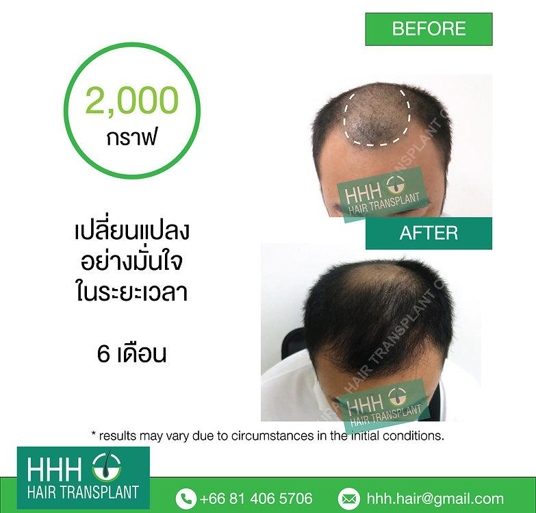hair transplant bangkok thailand