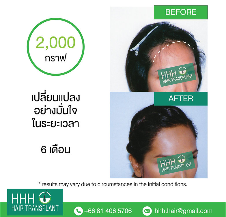 transgender hair transplant bangkok