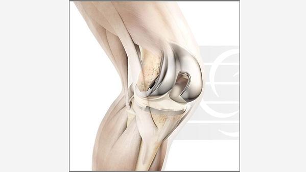Knee Image.jpg