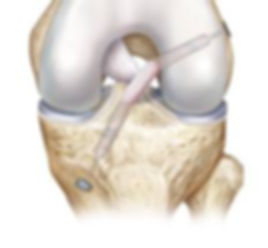 ACL Recon.jpg
