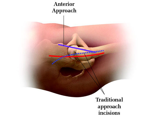 Approach Incisions Image_0.jpg