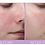 Thumbnail: Kate Somerville DeliKate® Recovery Serum