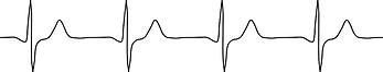 dog ECG.png