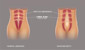 Postnatal Training