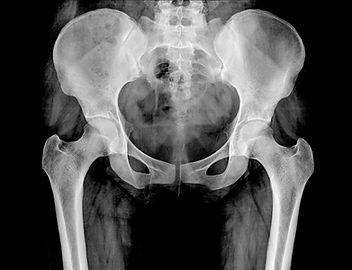 X-rays of Pelvis Tustin Chiropractic Chi