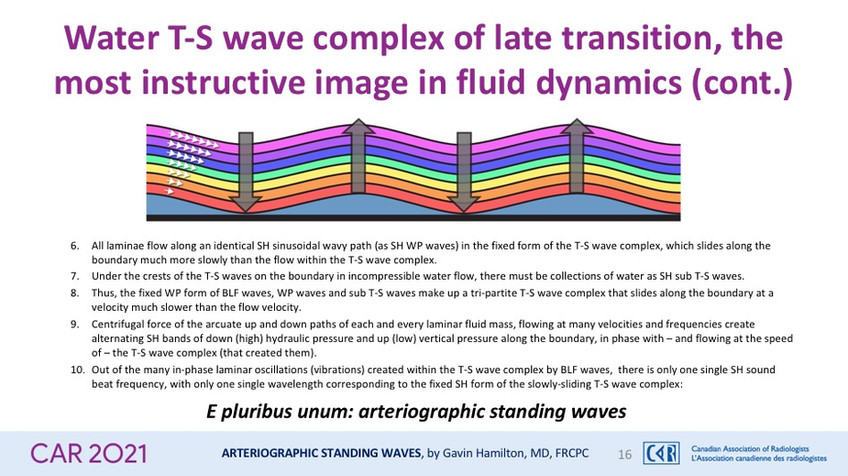 Water T-S wave complex of late transition, the most instructive image in fluid dynamics (continued)
