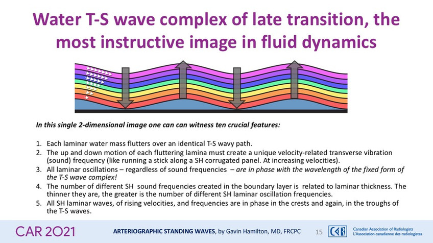 Water T-S wave complex of late transition, the most instructive image in fluid dynamics