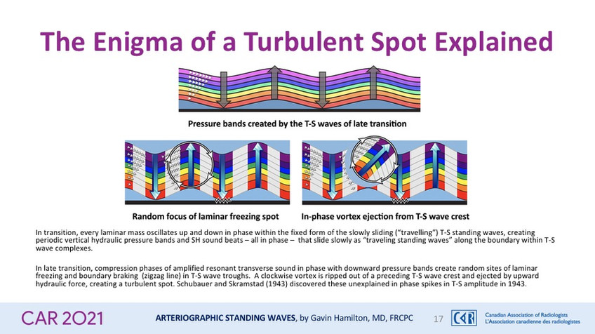 The Enigma of a Turbulent Spot Explained