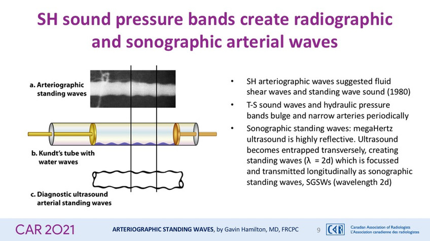 SH sound pressure bands create radiographic and sonographic arterial waves