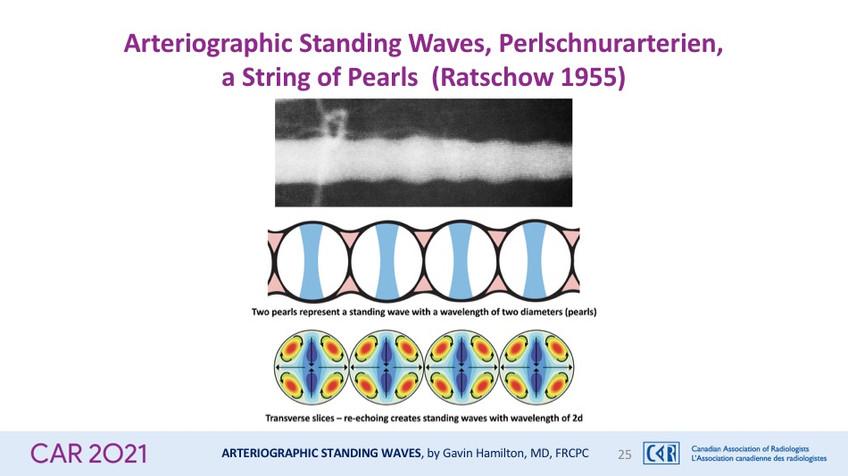 Arteriographic Standing Waves, Perlschnurarterien,a String of Pearls (Ratschow 1955)