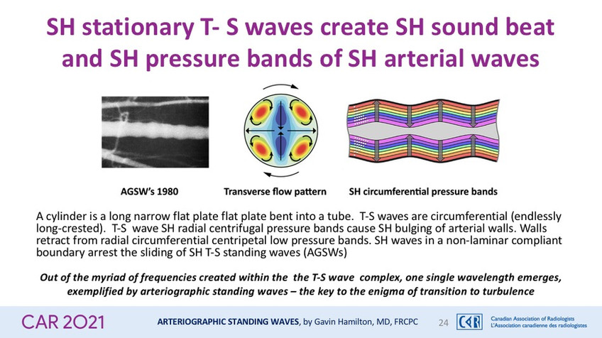SH stationary T- S waves create SH sound beat and SH pressure bands of SH arterial waves
