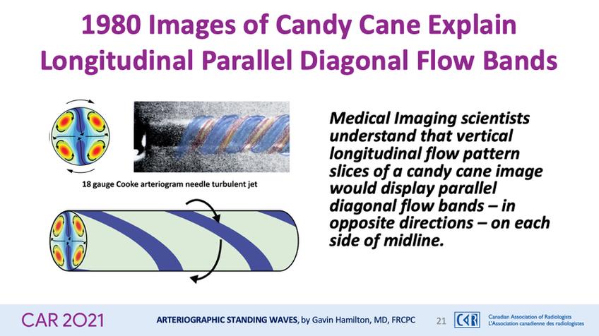 1980 Images of Candy Cane Explain Longitudinal Parallel Diagonal Flow Bands