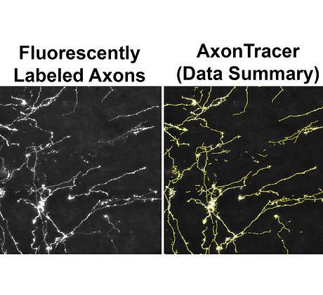 axon tracer.jpg
