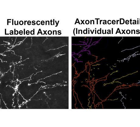 axon tracer detail copy.jpg