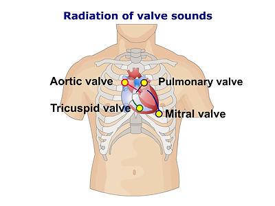 Radiation of valve sounds - all.jpg