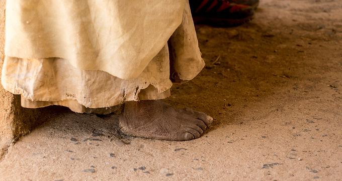 ארוכה היא הדרך  באתיופיה