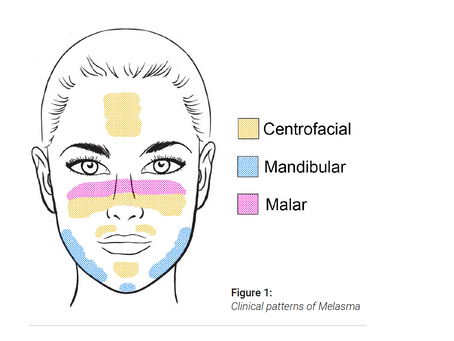 Skin 101: A Guide To Melasma