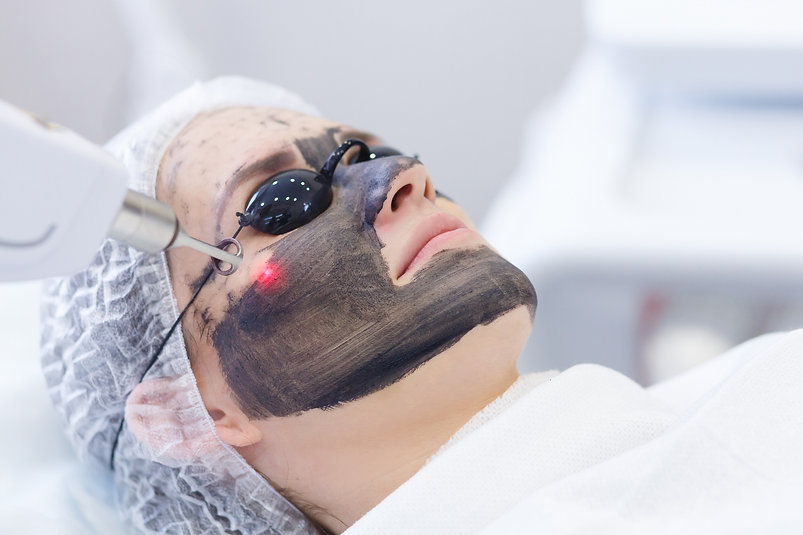 Carbon%20face%20peeling%20procedure.%20L