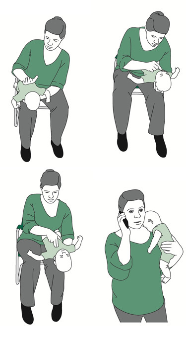 Picture demonstrating 5 back blows, checking the airway, 5 chest thrusts, and calling for help for a choking infant