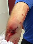 אבנר פירון הדרכות - פציעות