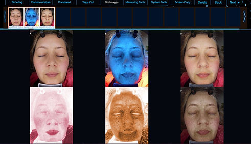 DermaPro6S Example new 6 image view.JPG