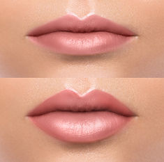 Comparison of female lips before and aft